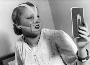 Op de Glimlach-school in Boedapest bekijkt een vrouw met een getekende mond voor haar gezicht gebonden zichzelf in een handspiegel. Hongarije 1937. Nationaal Archief/Spaarnestad Photo/Het Leven/Fotograaf onbekend
